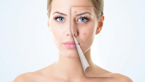 इस वजह से आपके चहरे के एक ही हिस्से पर बार-बार होते हैं Pimples!